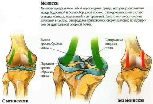 Фронтальная нестабильность коленного сустава перелом голеностопного сустава со смещением период восстановления
