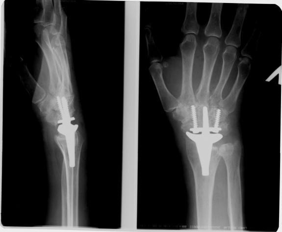Протезирование суставов кисти вывих коленного сустава грудничок