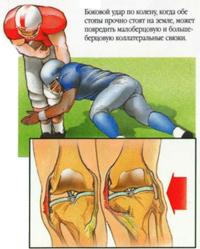 Передне задняя нестабильность коленного сустава артроз тазобедренного сустава лечение украина