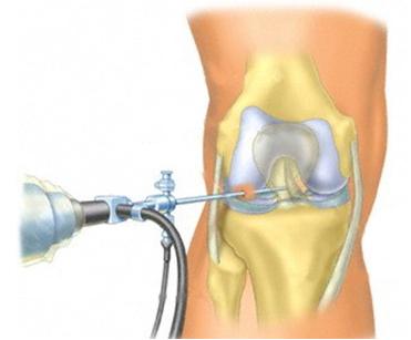 Артроскопия крупных суставов врожденный вывих тазобедренных суставо