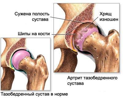 посттравматические ложные суставы