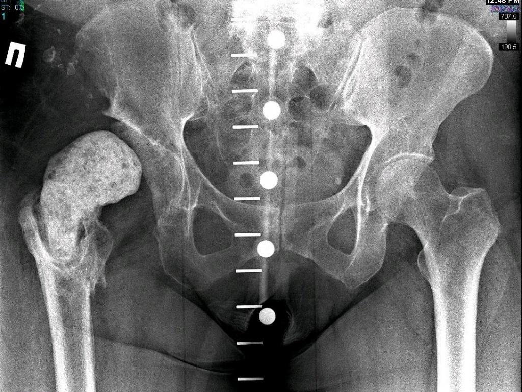 Что такое спейсер тазобедренного сустава какой врач лечит суставы должна фиксировать шина при переломе бедра