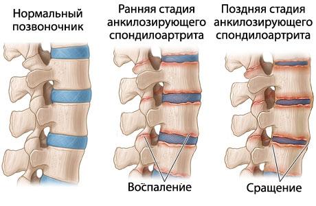 Боль в спине с правой стороны по пояснице