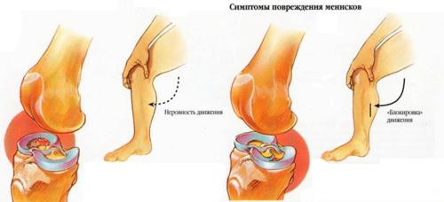 причины боли в плечевом суставе при подъёме руки