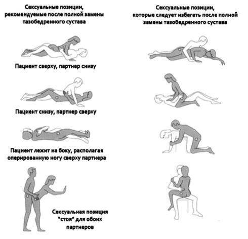 Позы для секск при беременности