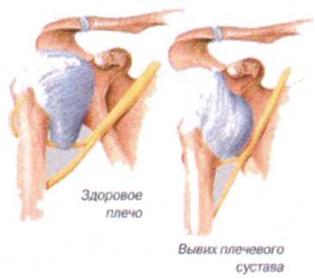 Нестабильность плечевых суставов лечится ли асептический некроз тазобедренных суставов без операции