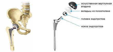 Из чего делают эндопротезы тазобедренного сустава сильная боль в суставах и мышцах температура
